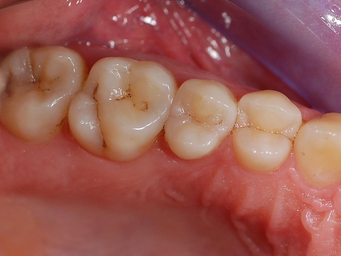 Рис. 25. Интактные зубы верхней челюсти.