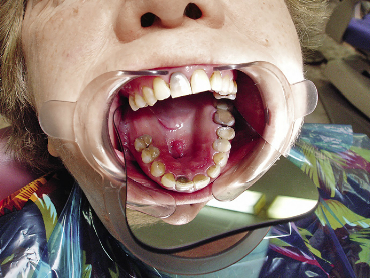 Рис. 2. Клиническая картина верхней челюсти (до операции).