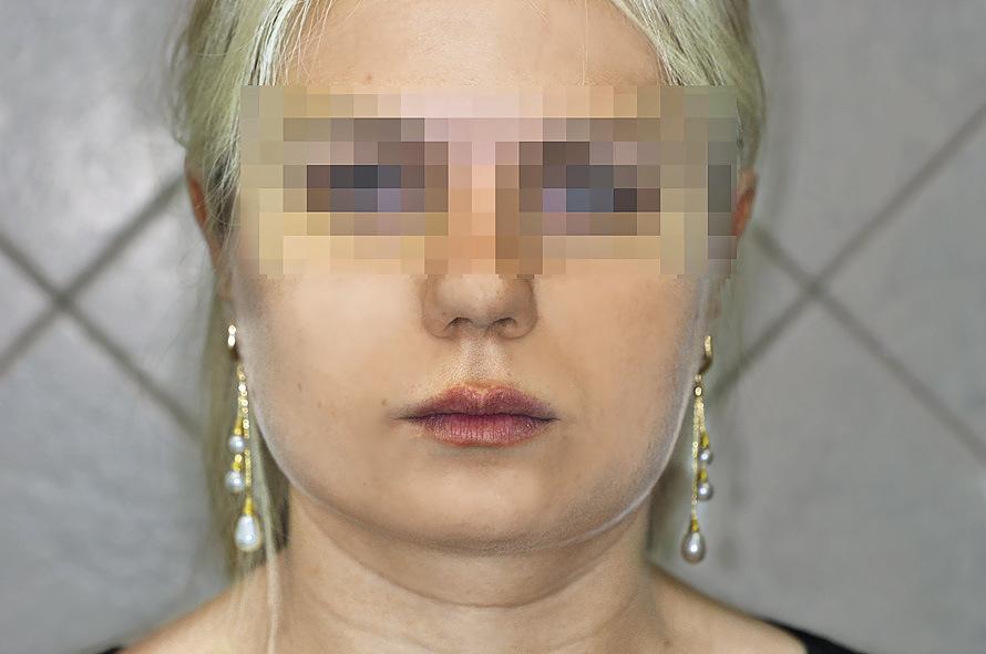 Рис. 2. Диспропорция лица.