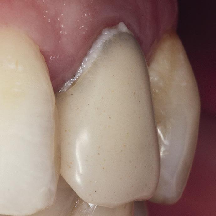 Рис. 2. Искусственная коронка зуба 22. Неправильный контур вестибулярной поверхности затрудняет самостоятельную гигиену.
