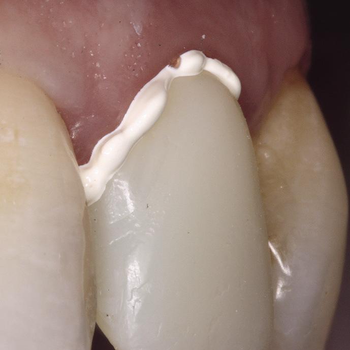 Рис. 5. Фиксация коронки зуба 22 на материал RelyXTM Temp NE