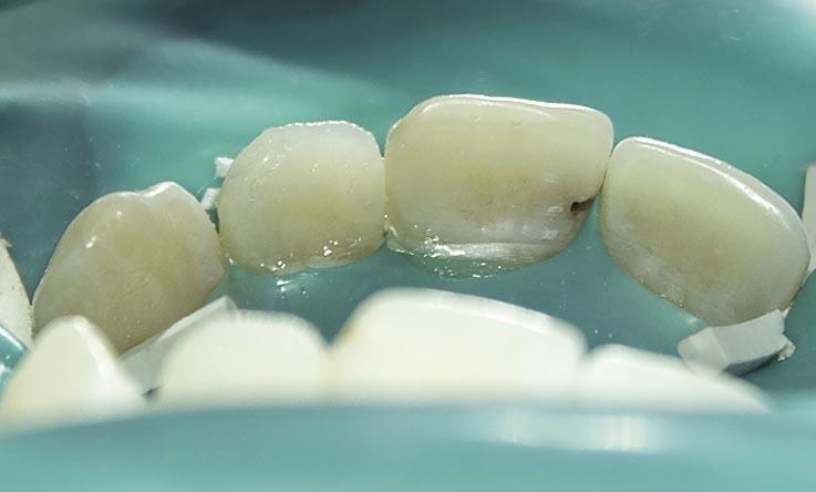 Рис. 13. Вид реставрации зуба 22 до полировки.