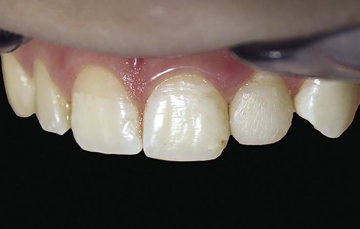 Рис. 14. Вид реставрации зуба 22 до полировки.