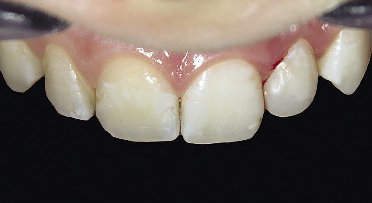Рис. 15. Реставрация зуба 22 отполирована.
