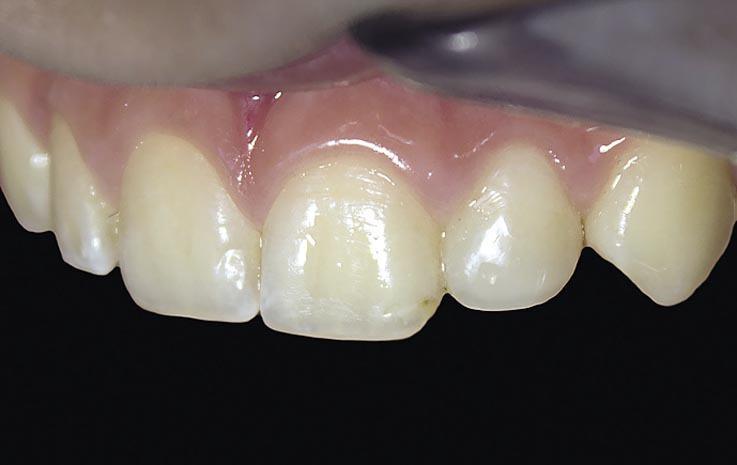 Рис. 16. Окончательный вид реставрации зуба 22 через 5 дней.
