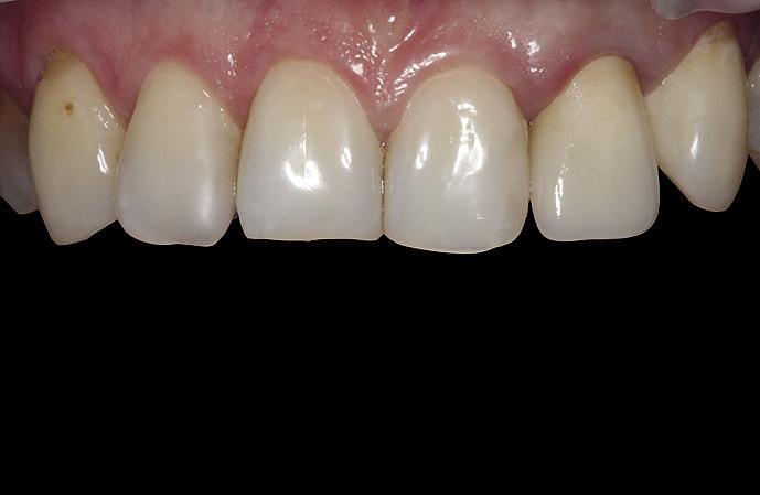 Рис. 17. Вид керамической коронки на основе диоксида циркония LAVATM зуба 22 на следующий день после фиксации.