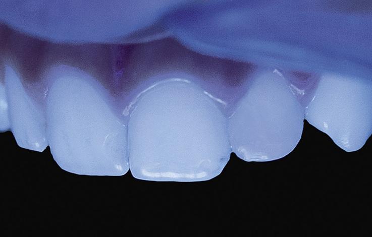 Рис. 17. Натуральная флюоресценция реставрации из A2 Filtek® Z550 и CT Filtek® Ultimate.