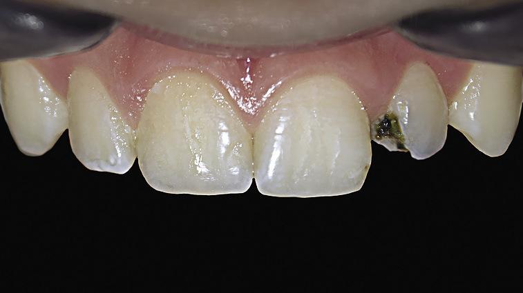 Рис. 1. Исходная ситуация, зуб 22: кариес дентина.