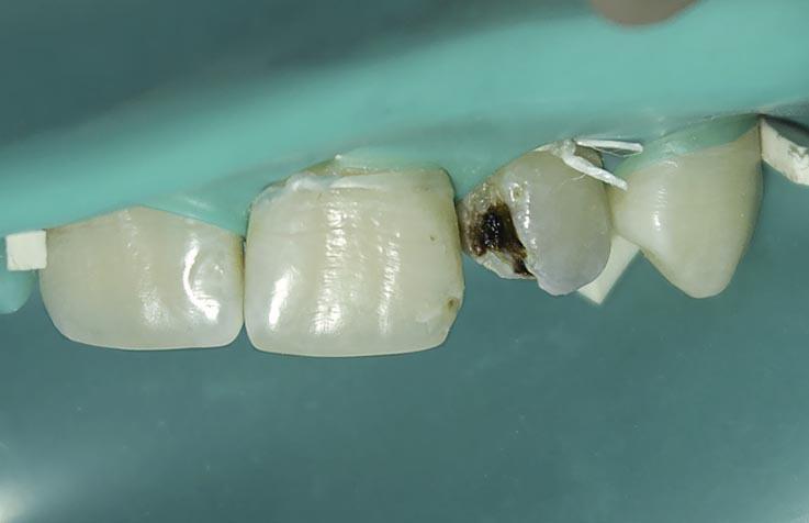 Рис. 5. Изоляция зубов с помощью коффердама.