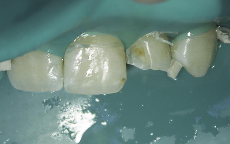 Рис. 6. Проведено препарирование зуба 22, создан и отполирован вестибулярный скос эмали.
