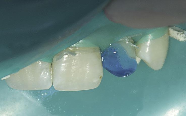 Рис. 8. Кондиционирование твердых тканей зуба 22 37%-ным гелем ортофосфорной кислоты.