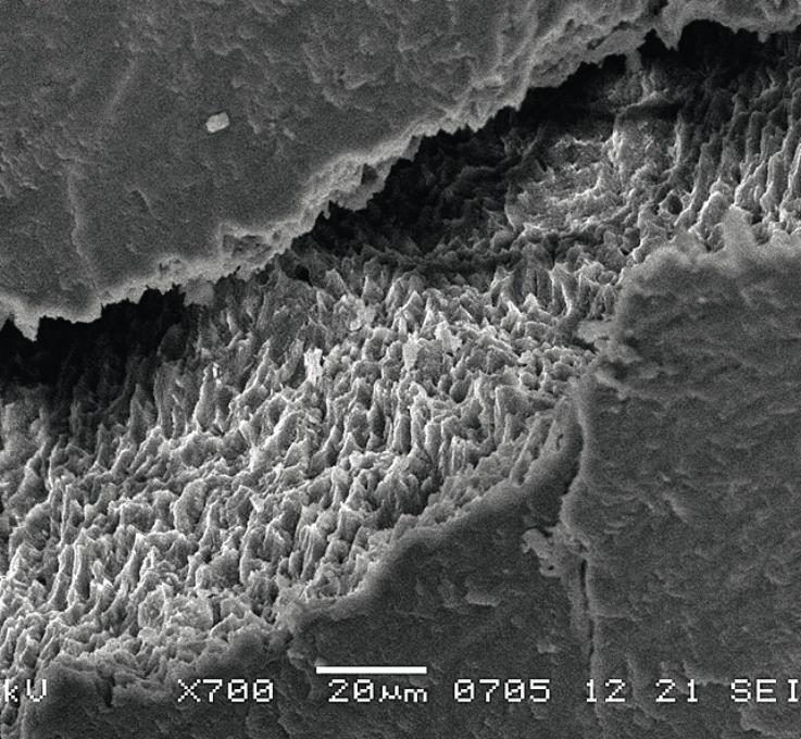 Рис. 3. РЭМ эмалево-композитной границы при полимеризационной усадке.