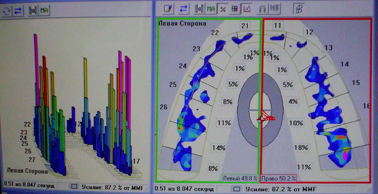 Рис. 3. Протокол T-scan-исследования окклюзии до лечения.