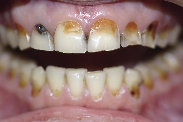 Рис. 3. Патология твердых тканей зубов.