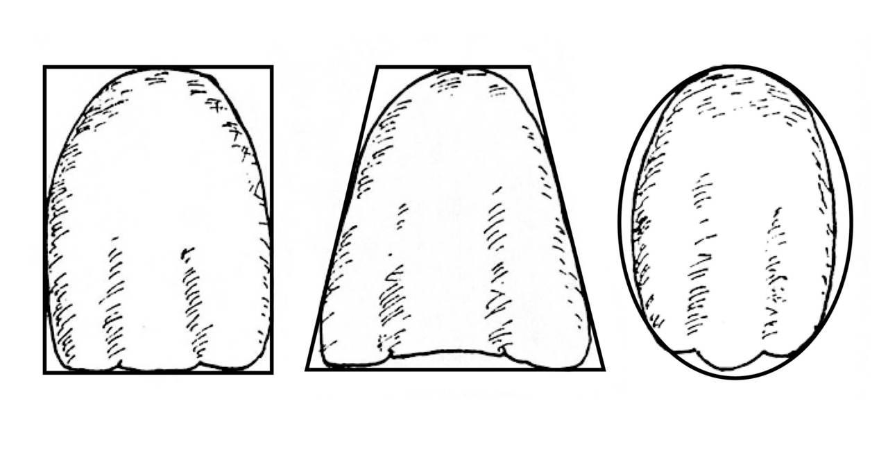 Рис. 4. Основные геометрические формы постоянных зубов.