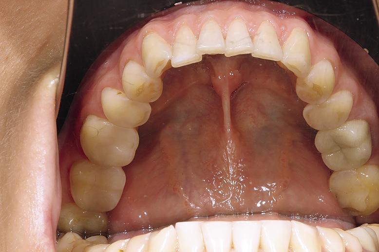 Рис. 4. Патологическая стираемость зубов.