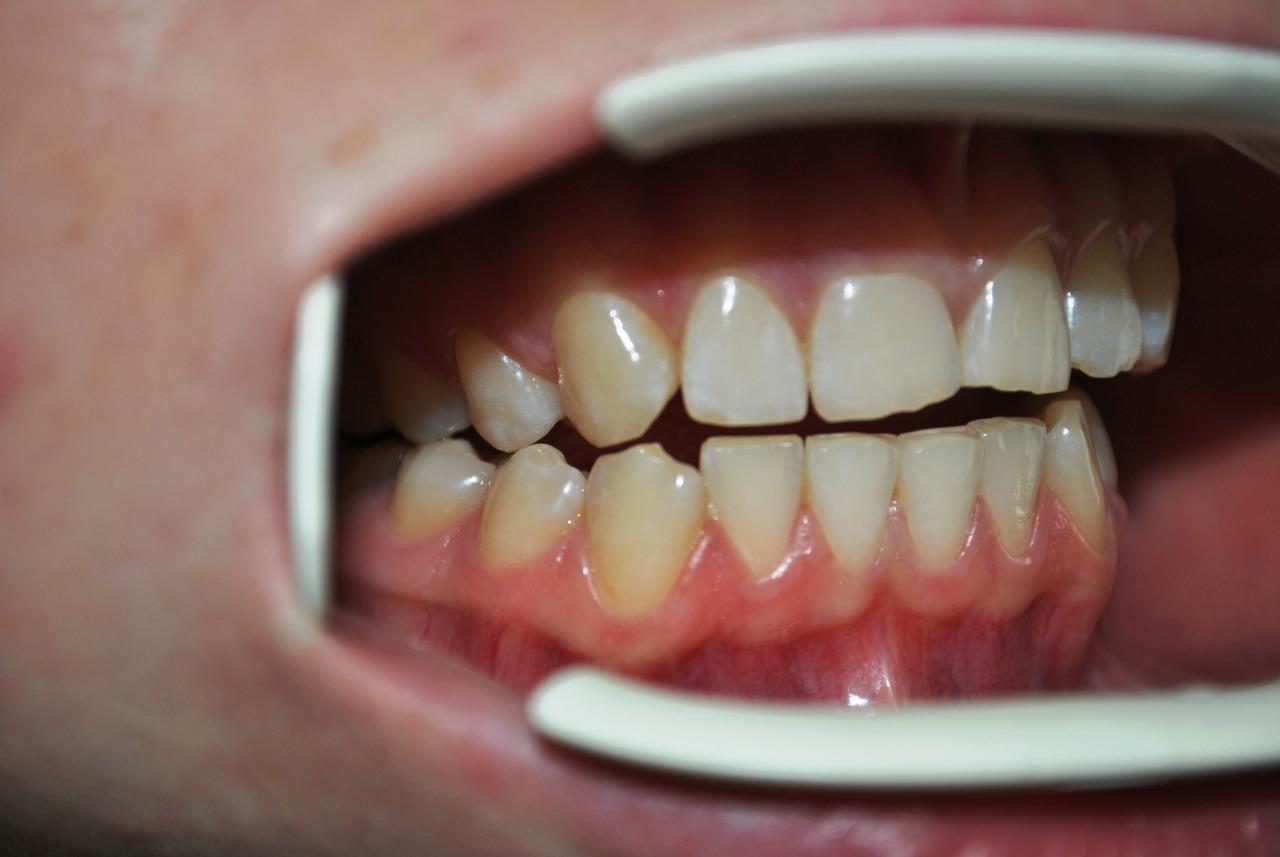 Рис. 5а. Смыкание зубных рядов: правая латеротрузия до лечения.