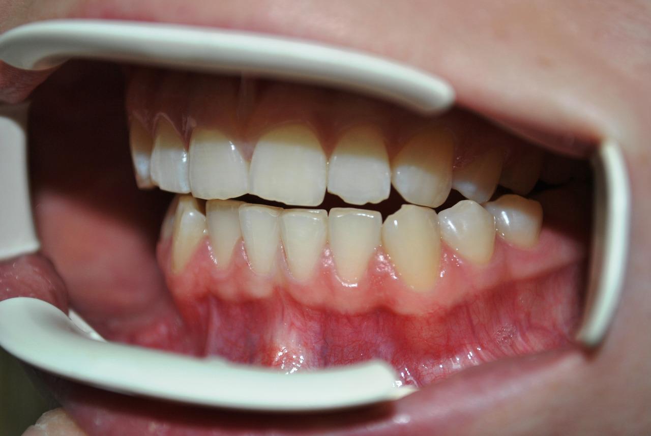 Рис. 5в. Смыкание зубных рядов: левая латеротрузия до лечения, левая латеротрузия после лечения.