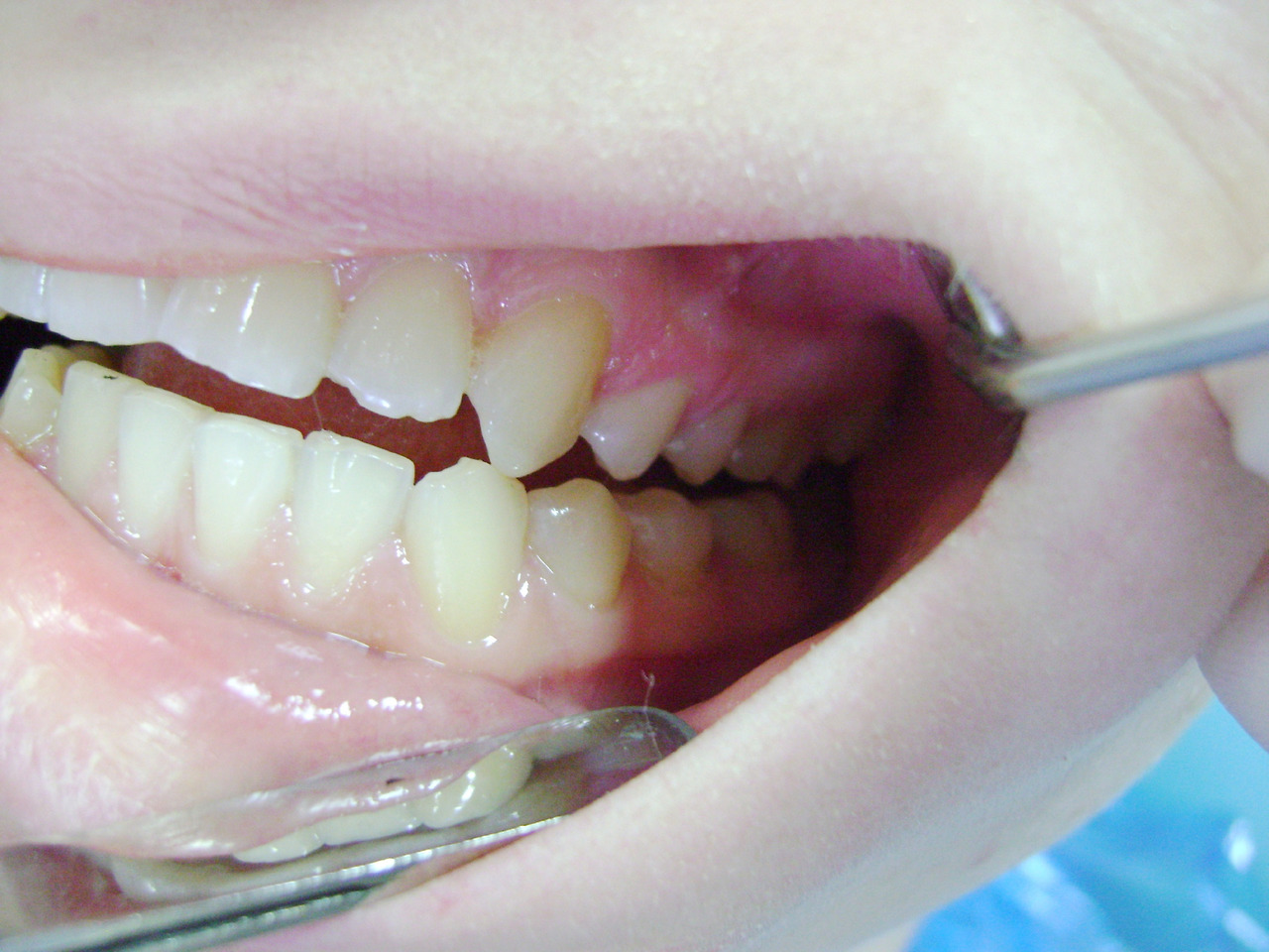 Рис. 5г. Левая латеротрузия после лечения.