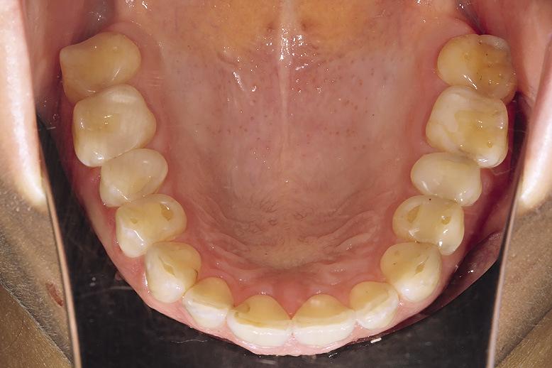 Рис. 5. Патологическая стираемость зубов.