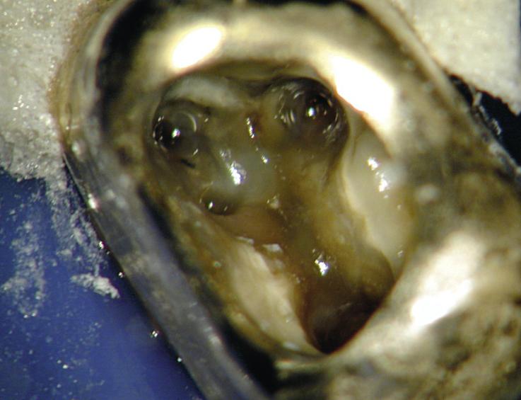 Рис. 6. 17 зуб. После разработки корневых каналов в мезиальном щечном корне обнаружен «пропущенный» второй корневой канал (MB2). Проведена механическая и химическая обработка всех четырех корневых каналов и их дезинфекция.