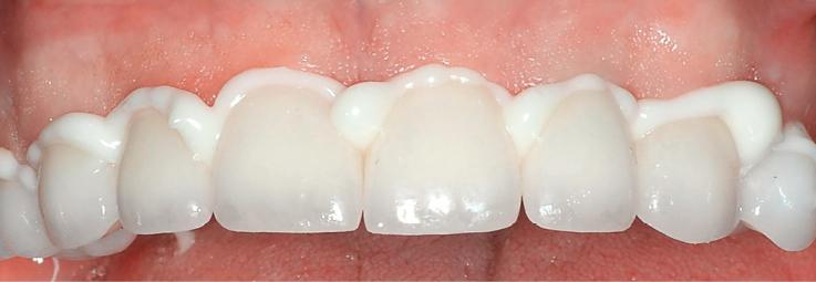 Рис. 6. Фиксация керамических коронок на верхней челюсти на цемент Maxcem Elite™.