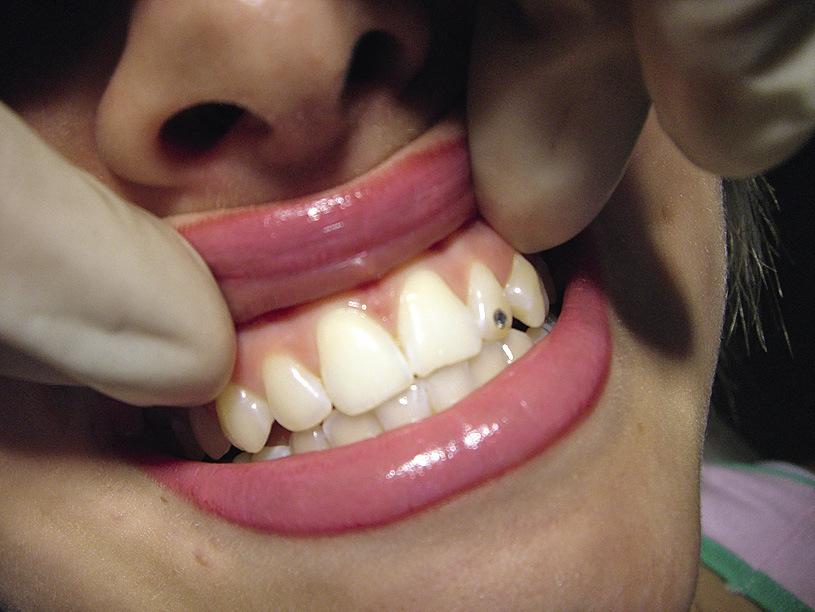 Рис. 6. Зубы треугольной формы.