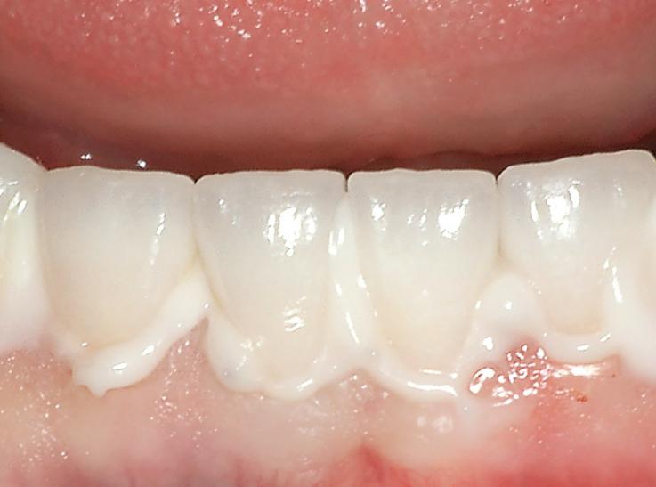 Рис. 7. Фиксация керамических коронок на нижней челюсти на цемент Maxcem Elite™.