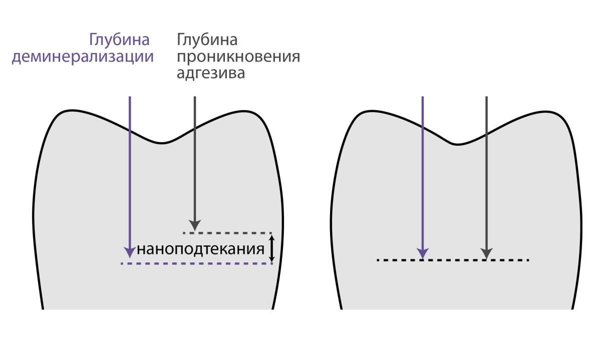Рис. 9. Схема образования наноподтеканий: а — глубина деминерализации превышает глубину проникновения адгезива в ткани зуба; б — проникновение адгезива произошло на глубину деминерализации.