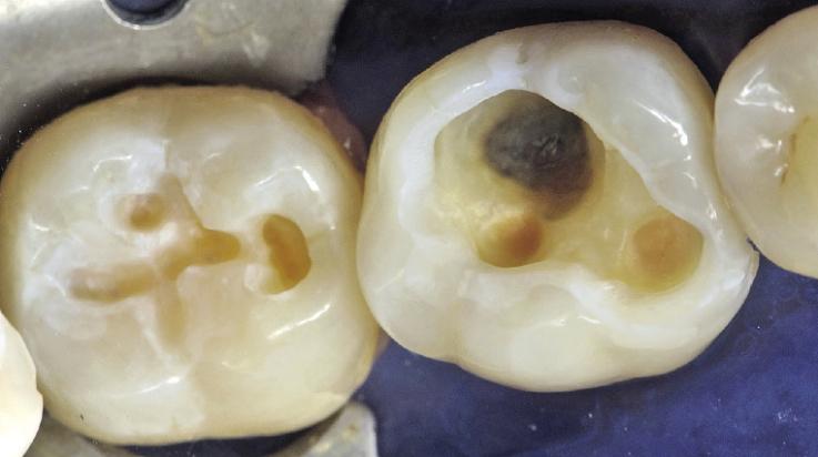 Рис. 7. Вид протравленных и подсушенных тканей зуба.