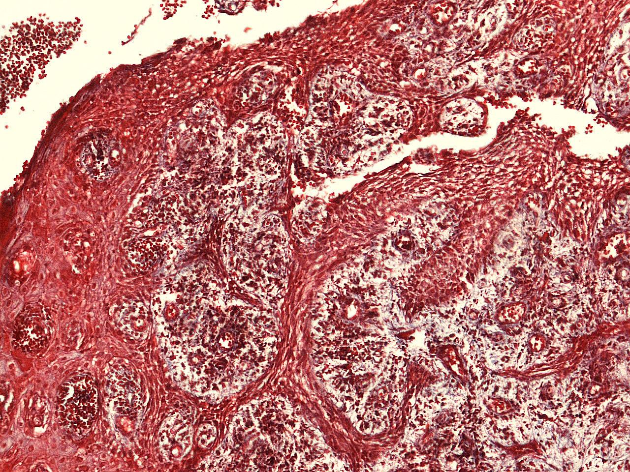 Рис. 7. Окрашивание гематоксилином и эозином: акантоз многослойного плоского эпителия, полнокровие и выраженная инфильтрация подлежащей соединительной ткани.
