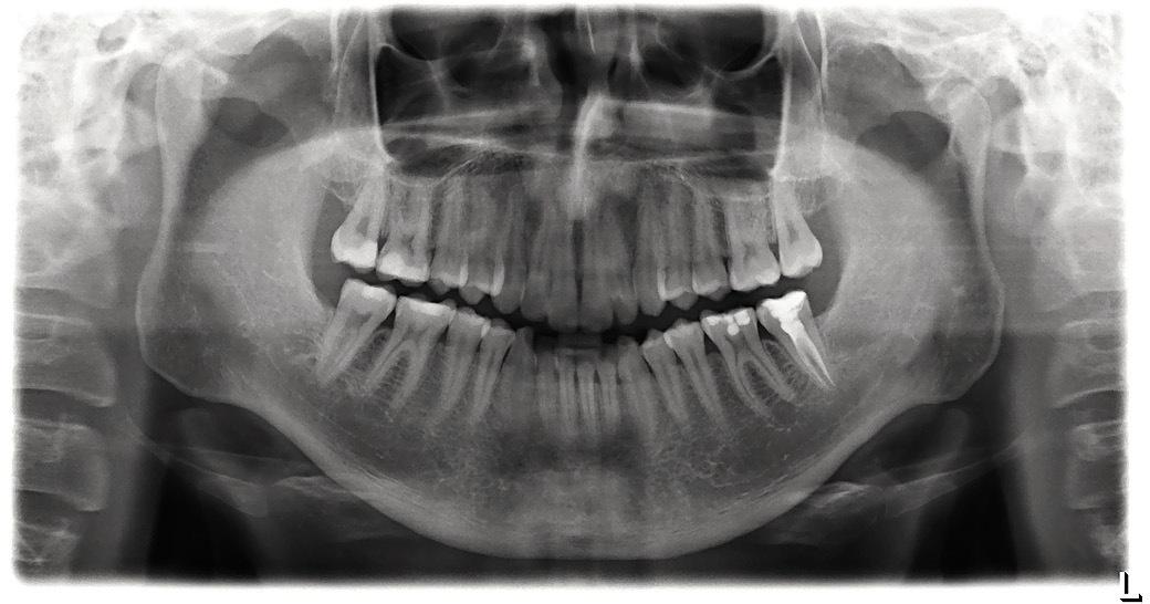 Рис. 7. Компенсаторная гипертрофия надкостницы в области углов нижней челюсти.