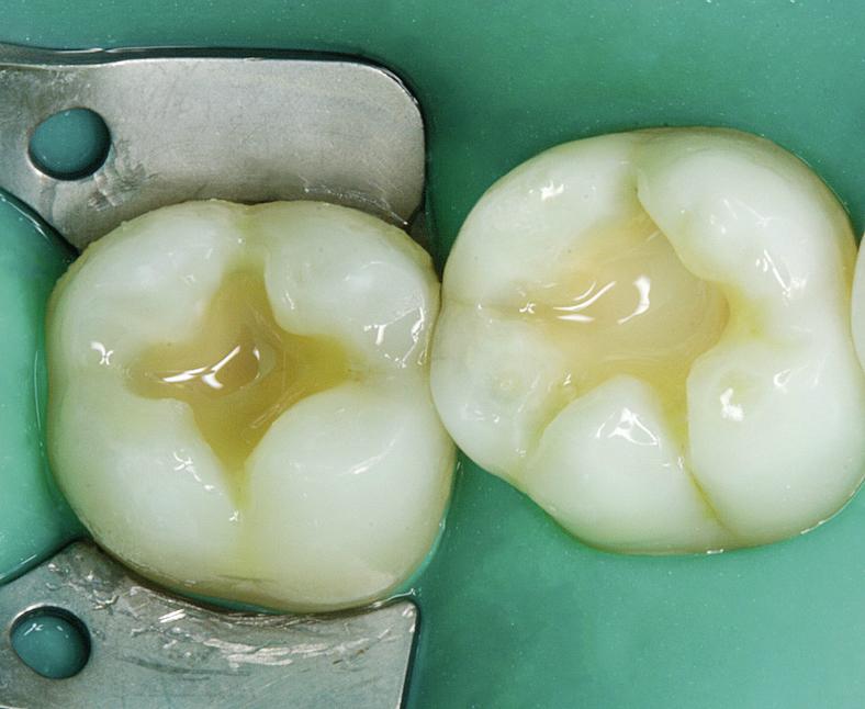 Рис. 8. Восстановлен материалом FiltekTM Bulk Fill (3M ESPE) отсутствующий дентин зубов 46, 47.