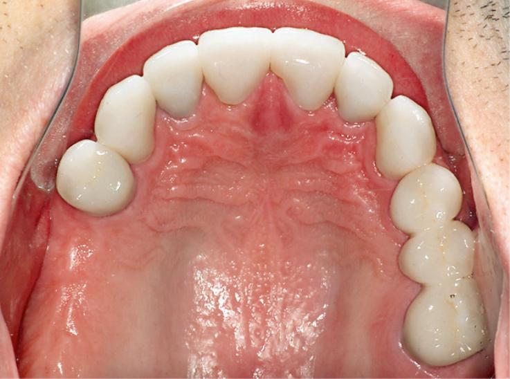 Рис. 8. Вид окклюзионной поверхности зубов верхней челюсти после лечения.