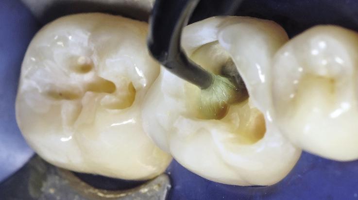 Рис. 8. Повторное нанесение 2%-ного водного раствора хлоргексидина биглюконата на протравленный дентин.
