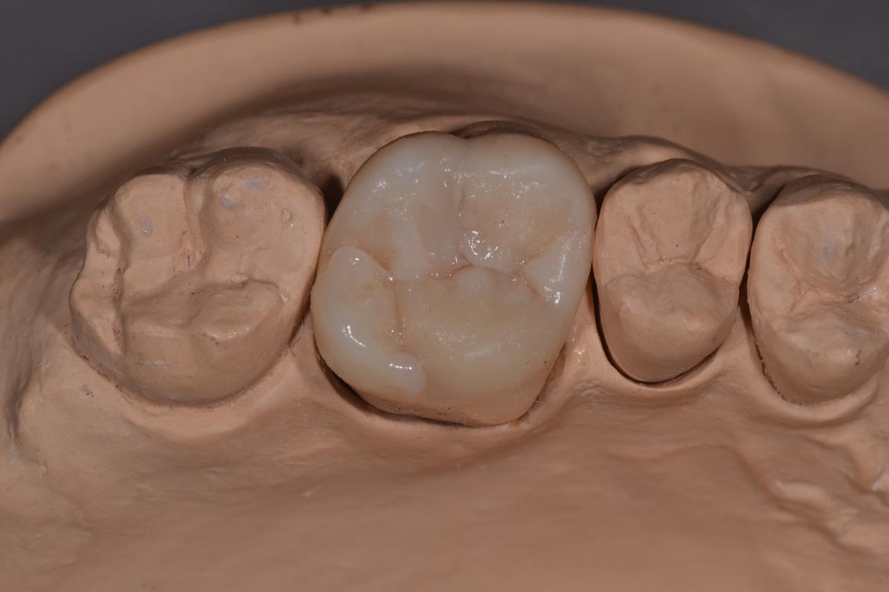 Рис. 8. 16 зуб в зубном ряду.