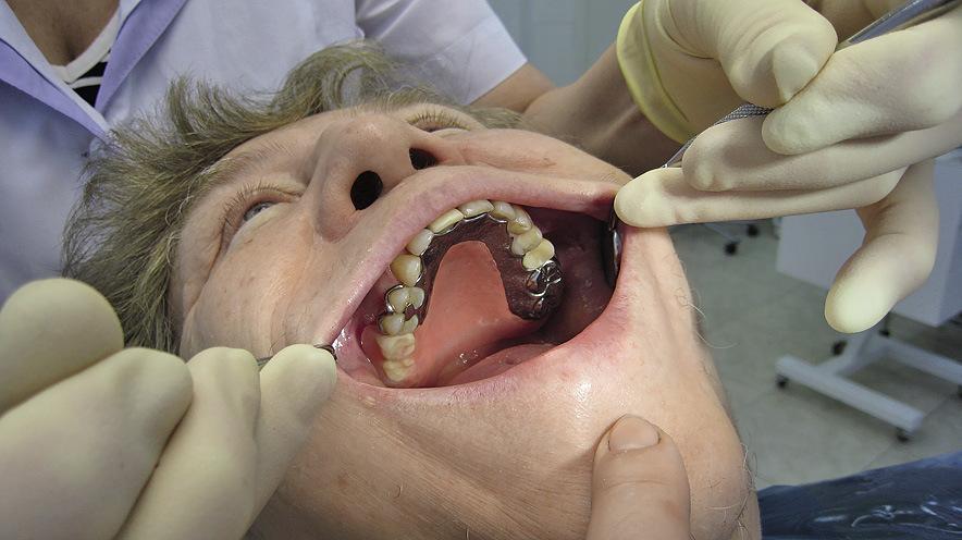 Рис. 9. Тест на фиксацию (при широком открывании рта протез не смещается).