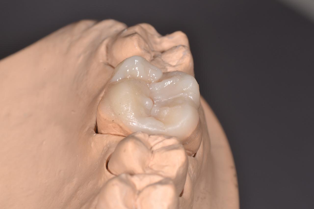 Рис. 9. 16 зуб в зубном ряду.