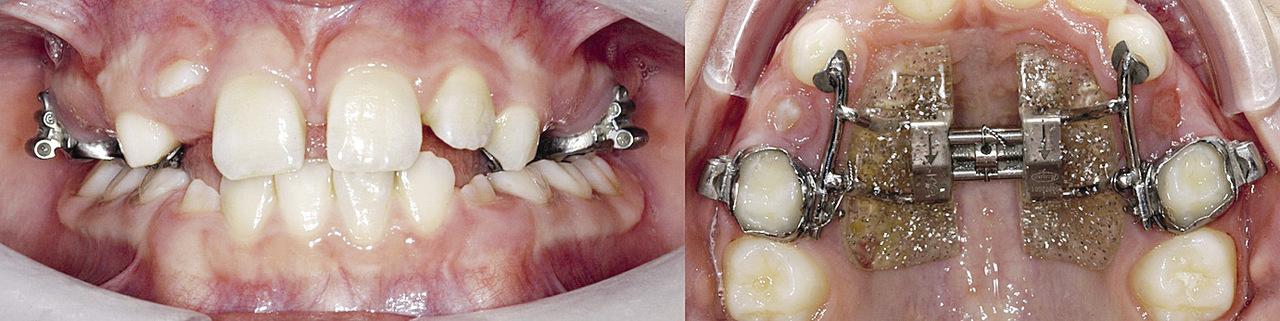 Рис. 10. Через 21 месяц 12 зуб самопроизвольно прорезался. В результате проведенного форсированного расширения верхней челюсти был устранен перекрестный прикус.