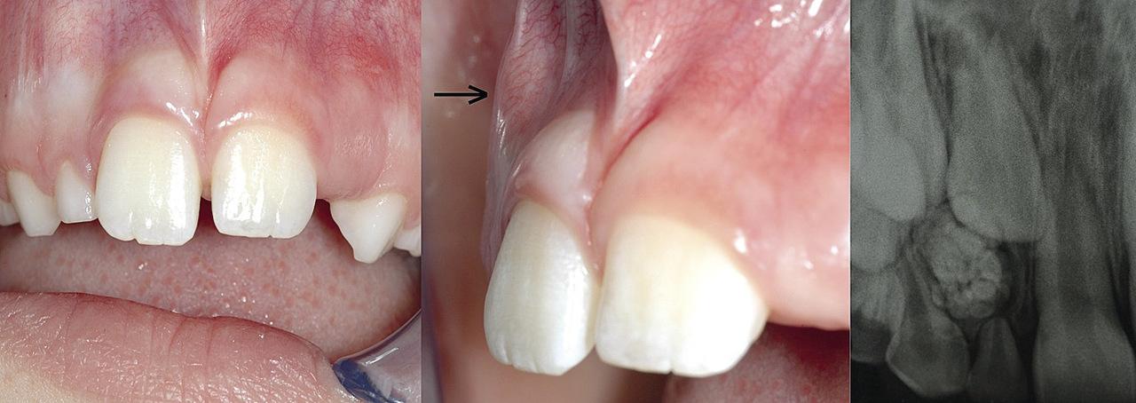 Рис. 1. Исходная клиническая ситуация. а) Вид спереди. б) Вид сбоку. в) Персистентный 52 зуб in situ, в щечной области апикальнее 52 зуба определяется образование костной плотности (стрелка). На предоперационной внутриротовой прицельной рентгенограмме виден ретенированный 12 зуб, а также многочисленные зубоподобные образования.
