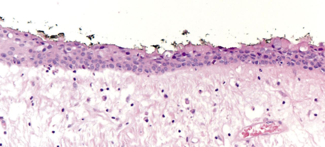 Рис. 2. Микроскопирование показало тонкий слой некератинизированного эпителия, состоящего из двух-трех слоев эпителиальных клеток кубической формы, и фиброзную стенку соединительной ткани с нестабильными связями. Стрелка показывает отдельные мукоидные клетки (полоса = 0,2 мм).