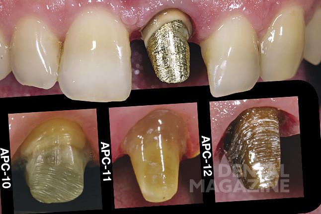 Рис. 1. Исходная ситуация. Определение цвета культи (в данном случае вкладки) зуба с помощью шаблона Simple Enamel and Prep Color Guide.