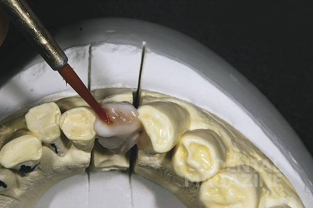 Рис. 22. Наносится краситель GC Initial Invivo (оттенок brown/orange), и выполняется первый обжиг. Затем с помощью маркера задается морфология зуба и текстура поверхности.