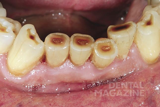 Рис. 25. Коронка зафиксирована в полости рта. Наблюдается полная цветовая интеграция, в том числе в области режущего края.
