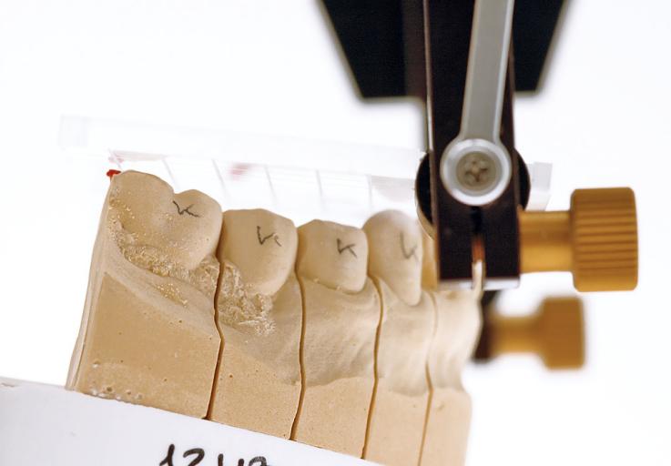 Рис. 8. Моделирование окклюзионной плоскости по дистальному бугру первого нижнего моляра.