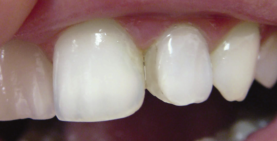 Рис. 3. После проведенного отбеливания «на ходу» 22 зуб посветлел и по цвету не отличается от центрального резца.