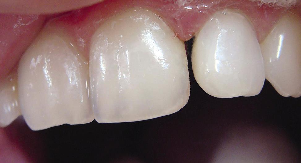 Рис. 5. Отсутствующий дентин восполнен опаком.
