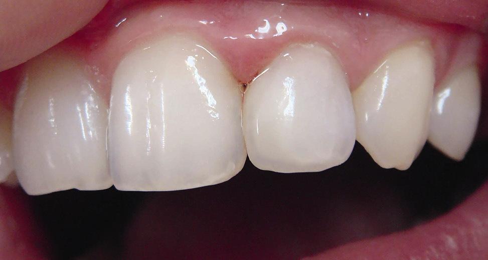 Рис. 6. Восстановлена прозрачность режущего края, цвет и оптические свойства, соответствующие рядом стоящим зубам.