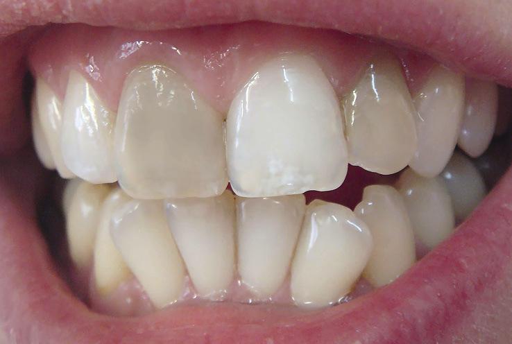 Рис. 7. Депульпированные 11 и 22 зубы изменены в цвете.