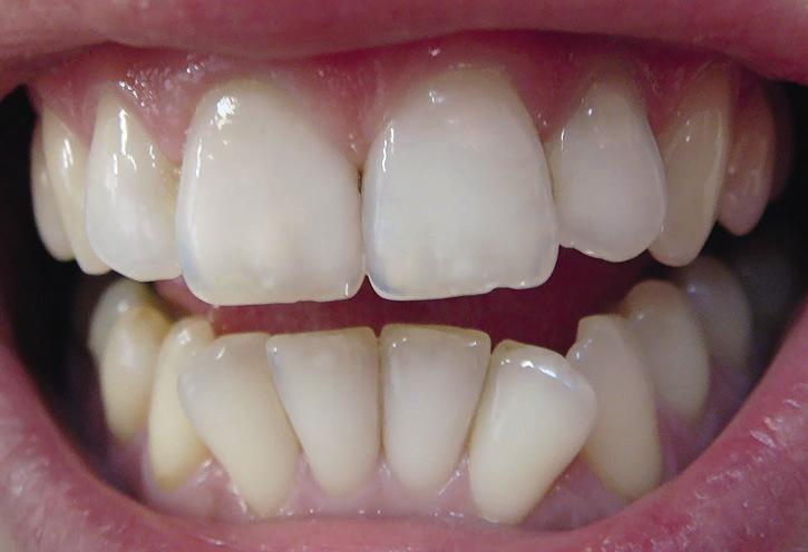 Рис. 9. После отбеливания 11 и 22 зубы не отличаются по цвету от рядом стоящих и симметричных зубов.